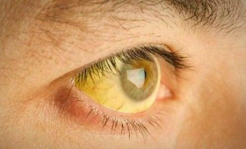 Жълтеницата показва, че се нуждаете от детоксикация