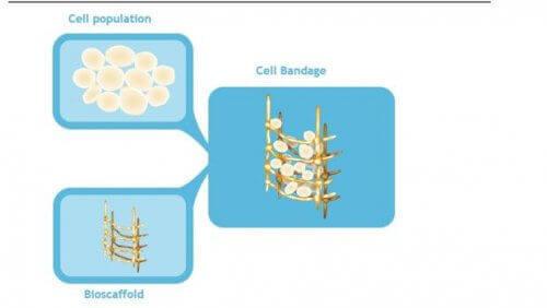 превръзка със стволови клетки за коляното
