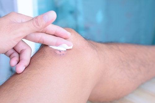 Намаленият прием на витамин С пречи за заздравяване на раните