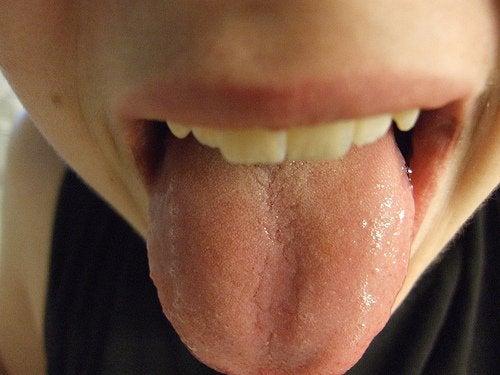 Какво казва езикът ви за здравето ви?
