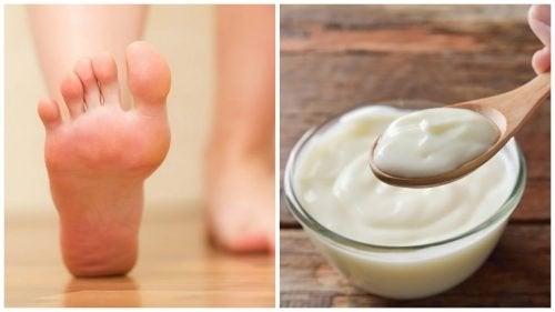 Домашно лечение с кисело мляко и оцет за премахване на мазолите по краката