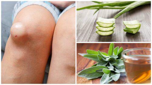 5-те най-добри средства за намаляване подуването на коленете