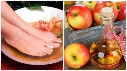 6 предимства от накисването на краката ви в оцет
