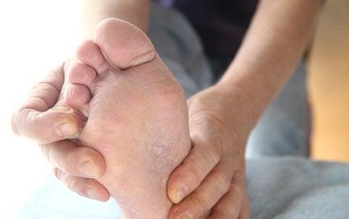 оцетът се бори с гъбичките по краката ви
