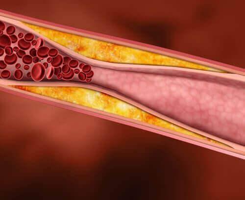 портокаловите кори предпазват от повишаване на лошия холестерол
