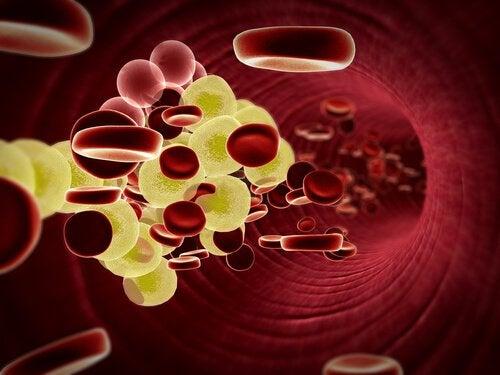 сърдечните заболявания засягат артериите