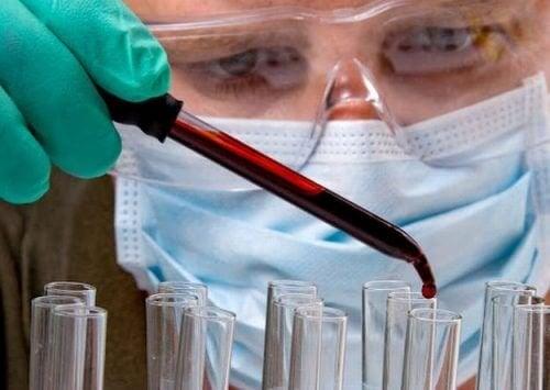 Кръвен тест индикира къде имате тумор