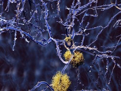 Свойствата на куркумата за борба с болестта на Алцхаймер