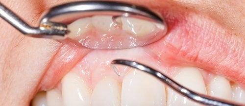 14 причини за кървене на венците при миене на зъбите