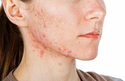 6 начина за вътрешно лечение на акне