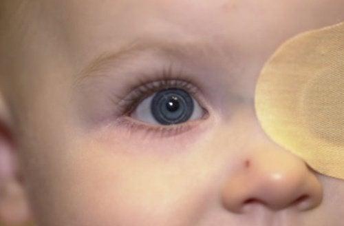 възрастта не е фактор за развитие на катарактата