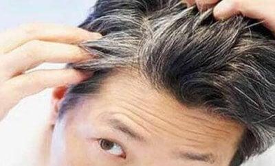Предотвратете ранното побеляване на косата с тези 6 храни и витамини