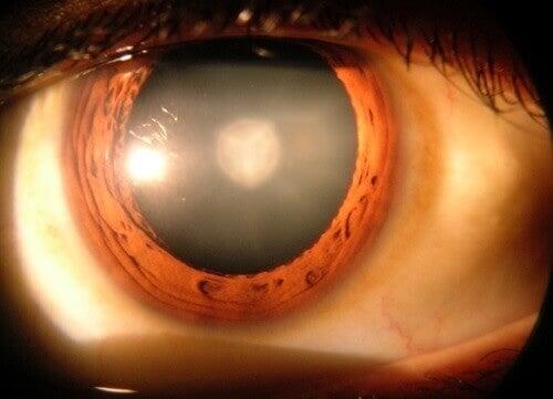 8 неща, които трябва да знаете за катарактата