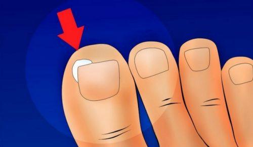 Как да предотвратите врастването на ноктите