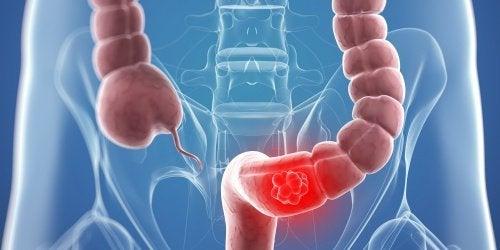 9 натурални средства за борба с рака на дебелото черво