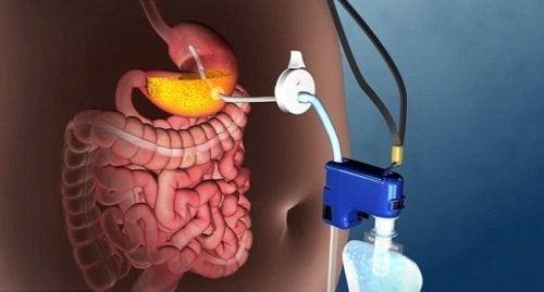 Нова техника за неоперативно лечение на патологичното затлъстяване