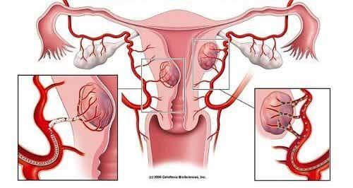 7 тревожни признака за наличие на фиброиди