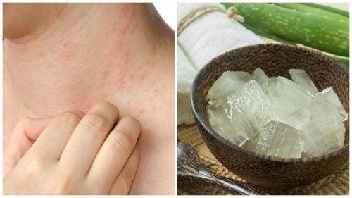 7 средства за облекчаване на топлинните алергии