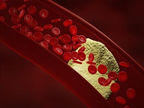 артериална болест