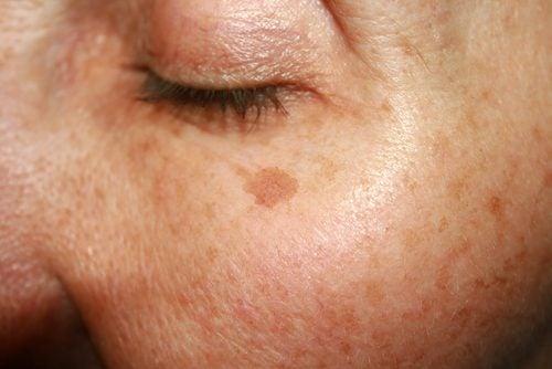 старчески петна по лицето