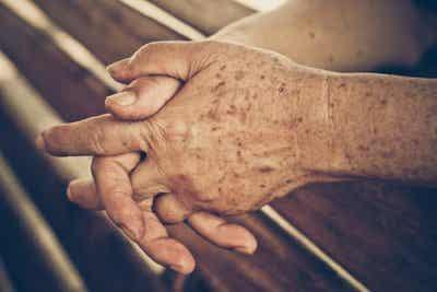Четири домашни средства за предотвратяване на старчески петна