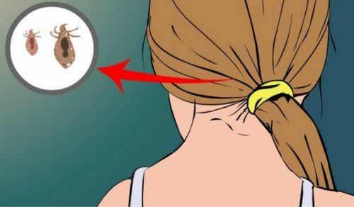 Как да се отървете от въшките по косата естествено