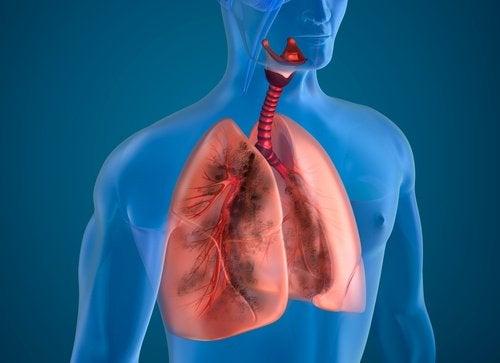 Диспнеята или задух не се дължи на задържането на течности.