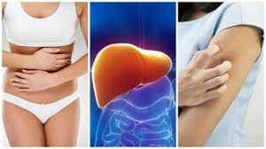 8 симптома, че черният дроб е претоварен
