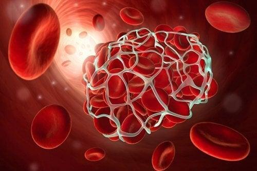 9 храни, които ще ви предпазят от тромбоза и инсулт