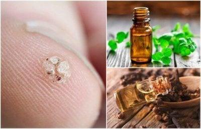 7 етерични масла за премахване на брадавици