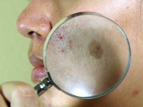 7 натурални процедури против пигментните петна на лицето