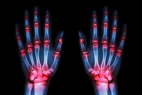остеоартрита не бива да се подценява