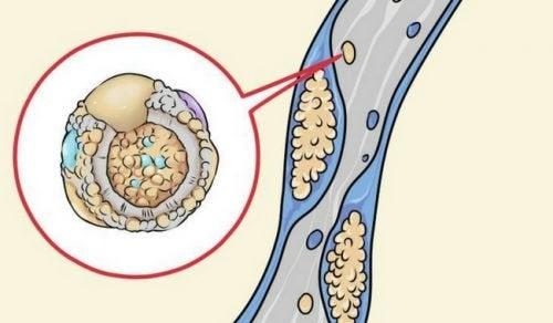 5 храни за прочистване на артериите по естествен начин