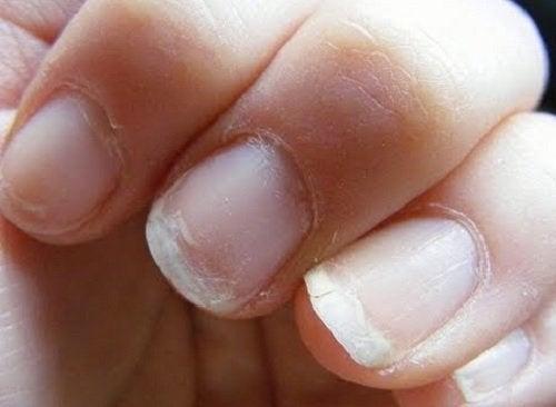 чупливи нокти в следствие на нарушеното кръвообръщение