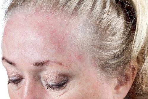 кожни инфекции и връзката им със спането с мокра коса