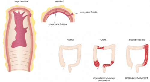 лечението на болестта на Крон изисква добро познание за симптомите