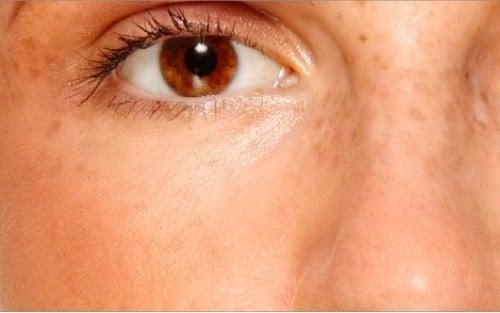появата на лунички може да е в следствие на синдрома на поликистозните яйчници