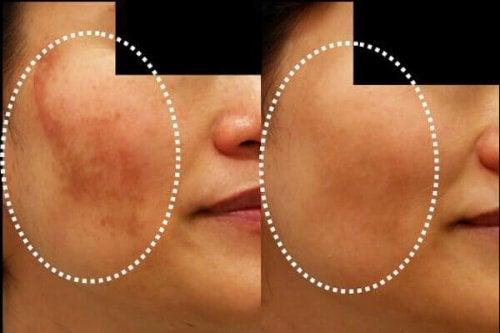 Намалете петната по кожата с тези 5 домашни маски