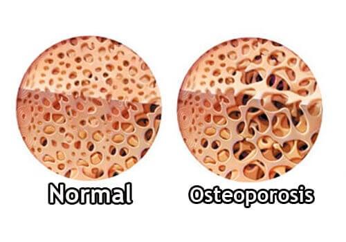 Болестта на Крон води и до усложнения като остеопороза.