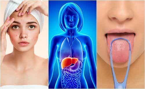 7 тревожни признака, че черният дроб е претоварен с токсини