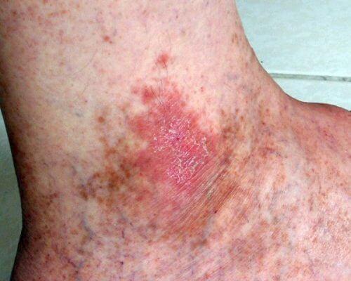 незарастващите рани за сред признаците на рак на кожата