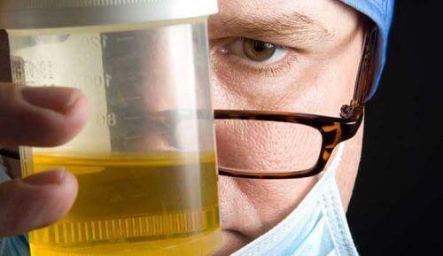 8 причини урината ви да мирише лошо