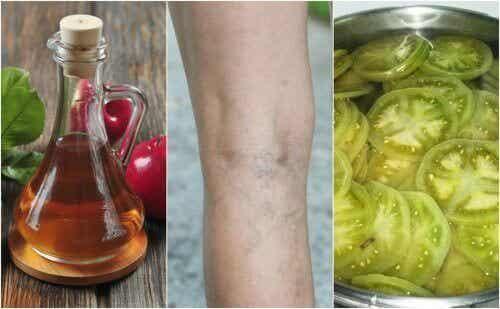 Лечение на варикозни вени с екстракт от оцет и зелен домат
