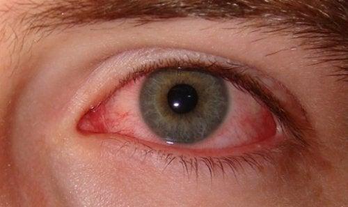 Как се проявява синдрома на сухото око?