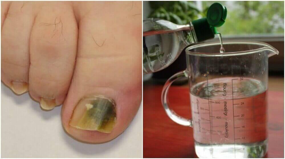 Победете гъбичките по ноктите с тази натурална рецепта