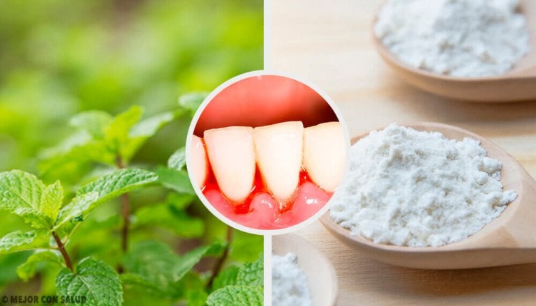 5 ефикасни домашни средства против гингивит