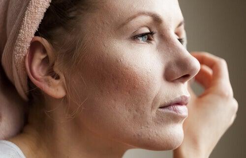 кожни симптоми, свързани с повишаването на кортизола