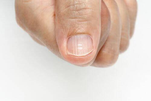 Как да премахнете линиите по ноктите на ръцете