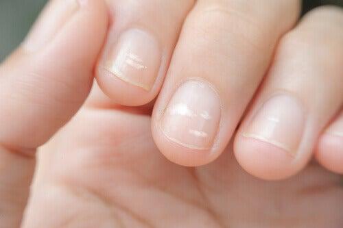 недостига на цинк и връзката му с линиите по ноктите на ръцете