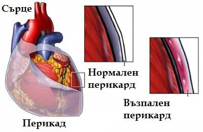 перикардитът причинява болка в гърдите